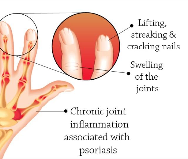 Psoriatic Arthritis Types Causes Risk Factors Diagnosis Treatment Prevention Management