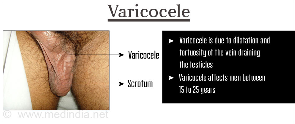 Testicular Varicocele After Surgery