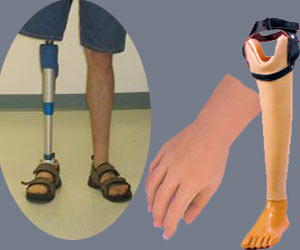 Artificial | Prosthetic Limbs - How to Use Basic Features Jaipur Foot