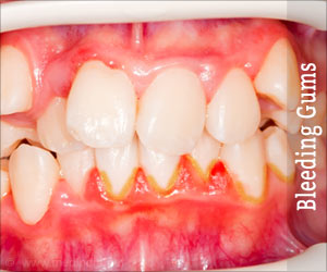 Causes and Symptoms of Bleeding Gums