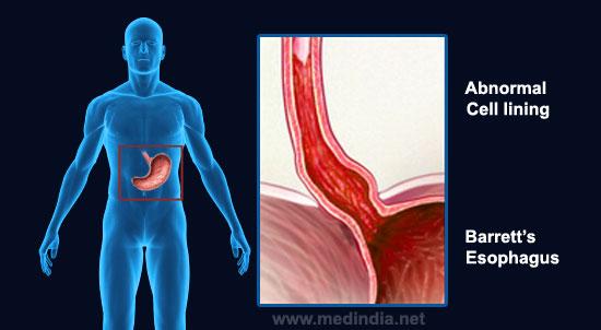 Barrett's Esophagus - Symptoms Diagnosis & Treatment
