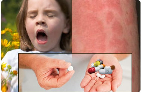 Choose The Right Over-the-Counter (OTC) Drugs for Allergy