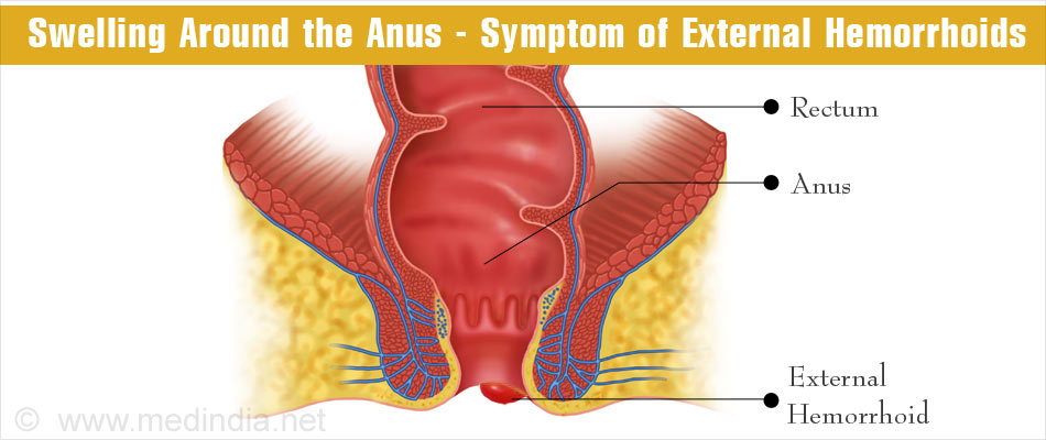 Piles in Pregnancy - Causes Symptoms Treatment & Health Tips