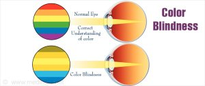Color Blindness  Types, Causes, Symptoms, Diagnosis