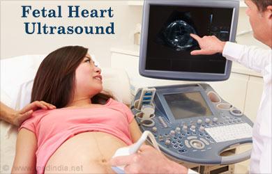Fetal Corazón Ultrasonido