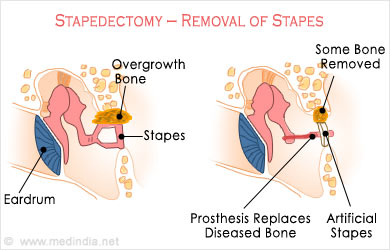 Image result for Stapedectomy meaning