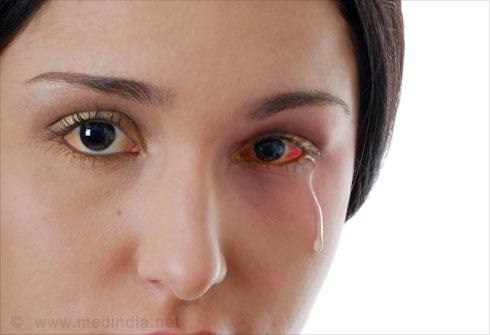 Eye Allergies - Slideshow