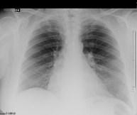 radiografia del torace in pz con versamento pericardico