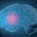 Accidents ischémiques cérébraux