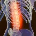 Complications neurologiques d'un traumatisme du rachis