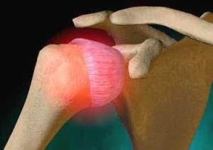 Coxopathies chroniques de l'adulte : diagnostic et traitement (Suite)