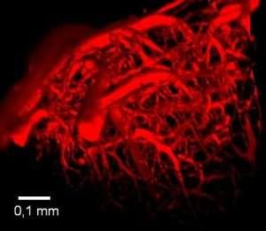 Imagerie vasculaire (à l'exclusion de l'échographie)