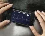 Suivi cardiologique de l'opéré vasculaire