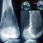 Fibrosarcomes, histiocytofibromes malins et sarcomes à cellules géantes