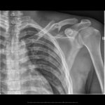 Fracture claviculaire
