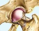 Fracture de l'extrémité supérieure du fémur