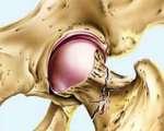 Fractures de l'extrémité supérieure du fémur chez l'adulte
