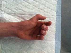 Fractures, entorses et luxations de la main et des doigts