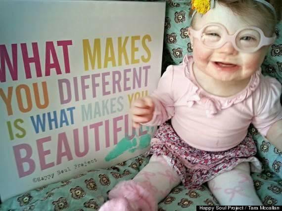 Međunarodni dan osoba s Down sindromom