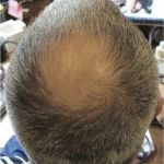 Plaukų ligų diagnostika ir gydymas GK Klinikoje Vilniuje