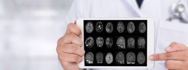 medical concept alzheimer