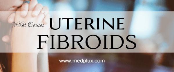 Uterine Fibroids Symptoms, Causes and Treatment