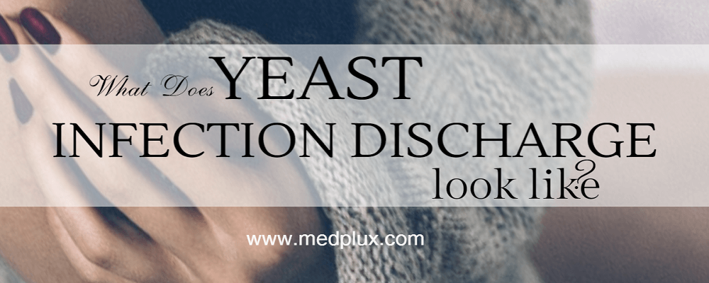 Yeast Infection Discharge  Causes  Treatment