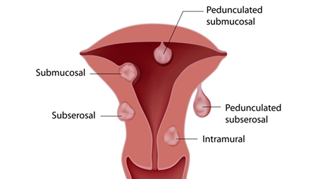 fibroid causing spotting after period ends