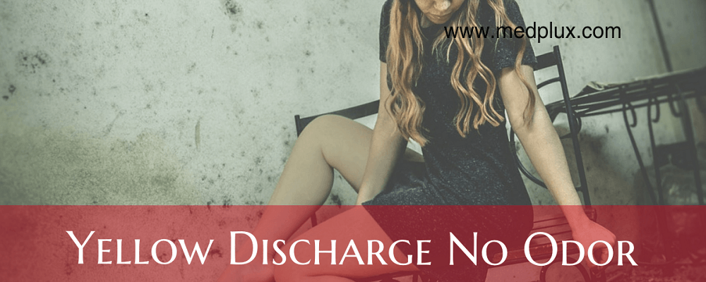 Yellow Discharge No Odor, Smell Or Vaginal Itching 5 -2838