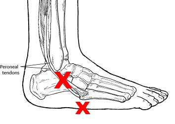 Ankle Amp Foot Tendonitis 5 Main Causes Symptoms Treatment