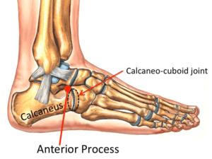 heel bone