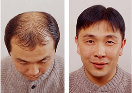 hair transplant and artificial hair exoderm medical centers