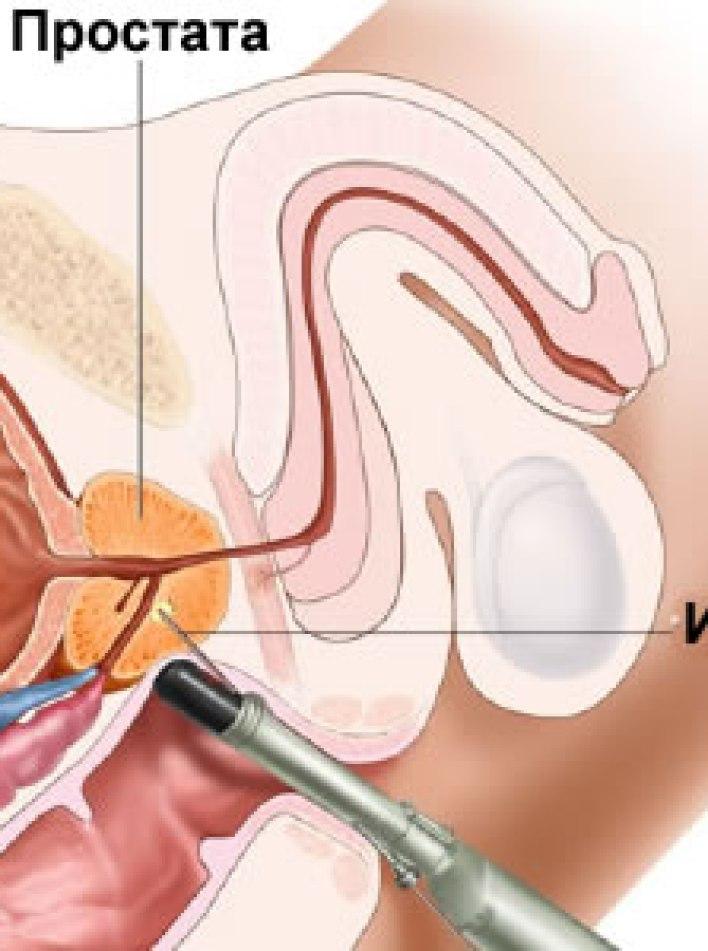 Шприцевание от простатита народное средство от простатита у