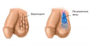 17-simptomy-varikocele