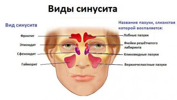 хронический этмоидит