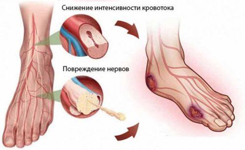 Diabeticheskaya-stopa