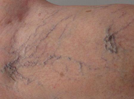 Клинические симптомы варикоза, фото 2