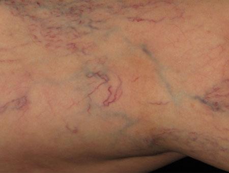 Клинические симптомы варикоза, фото 1