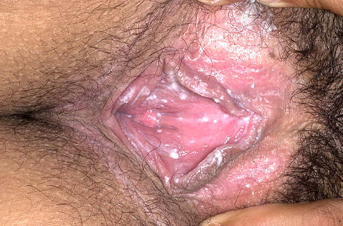 Симптоматика молочницы