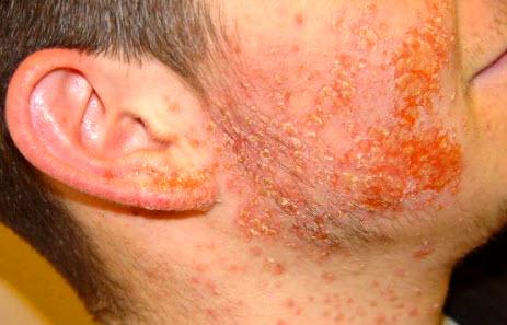 Последствия пиодермии