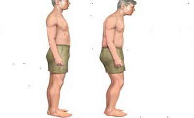 Симптомы болезни Бехтерева