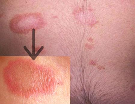 Симптомы розового лишая у человека