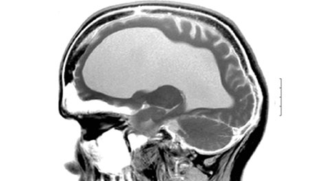 Внутренняя гидроцефалия головного мозга