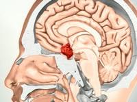 АКТГ (адренокортикотропный гормон)