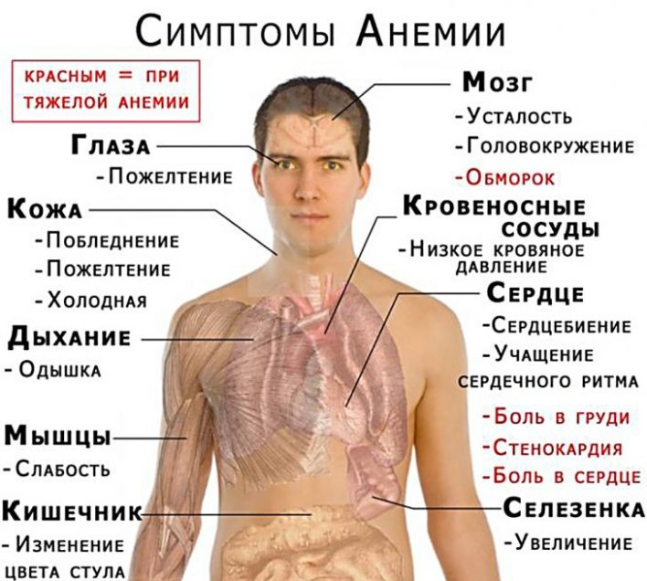 anemiya-lechenie-narodnymi-sredstvami