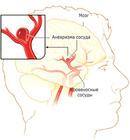 Аневризма судин головного мозку