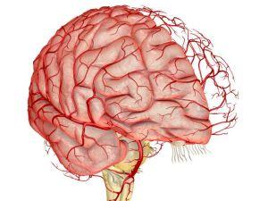 Атеросклероз церебральный