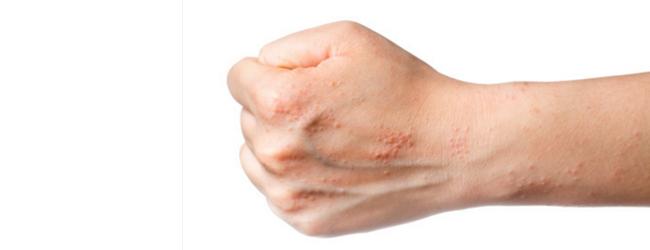atopicheskij-dermatit