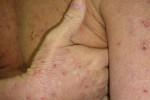 atopicheskij dermatit-9