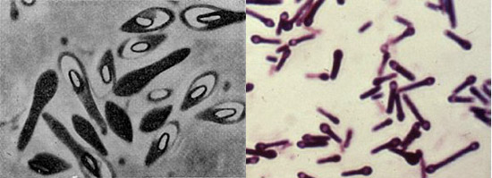маслянокислые бациллы